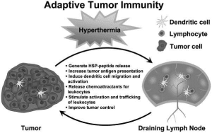Hyperthermia and Cancer